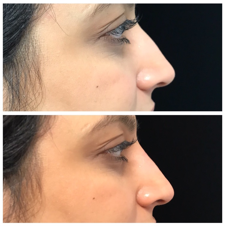 non surgical rhinoplasty before after